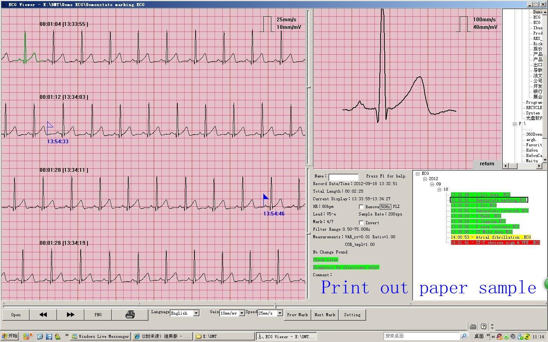 heart disease ambulatory electrocardiogram